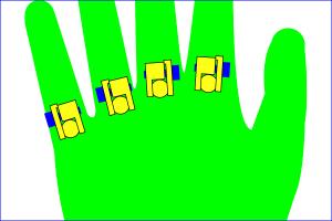 指間膜近くのMP関節